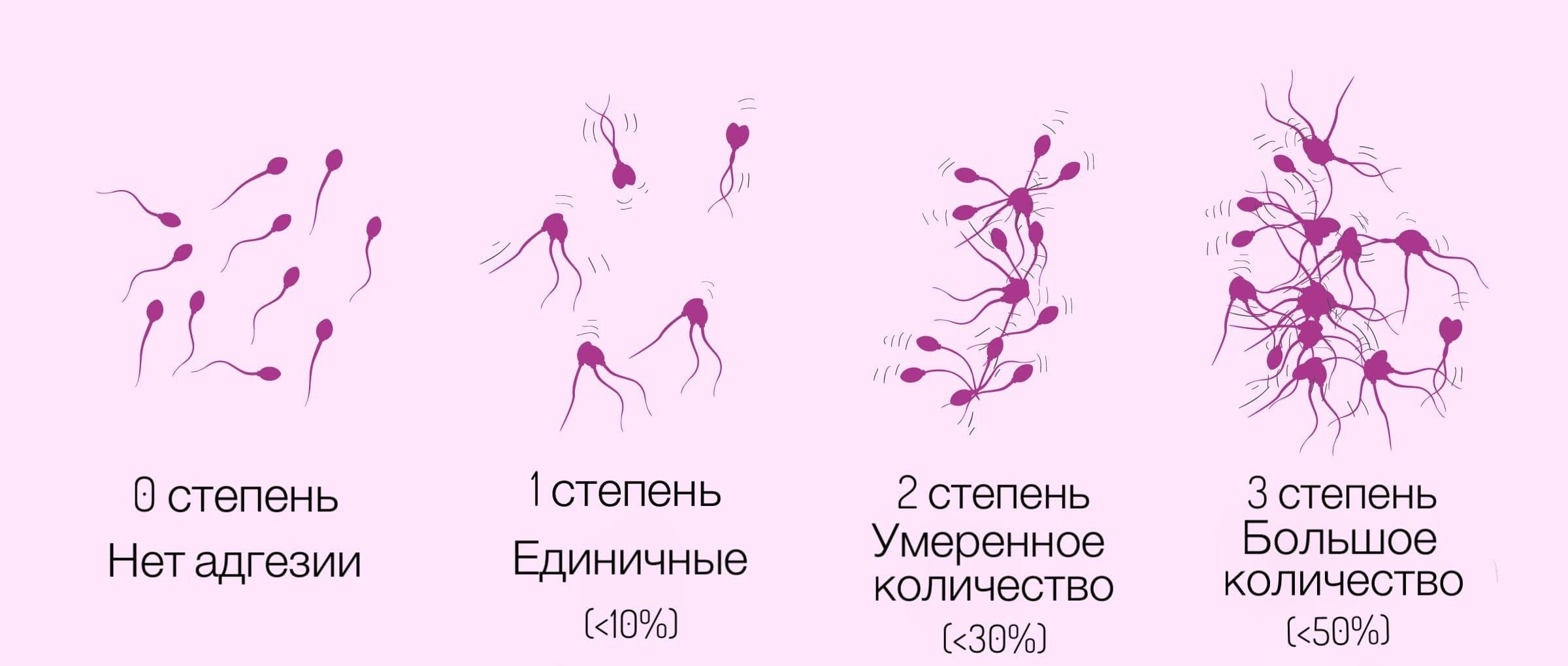 строение мужского сперматозоида