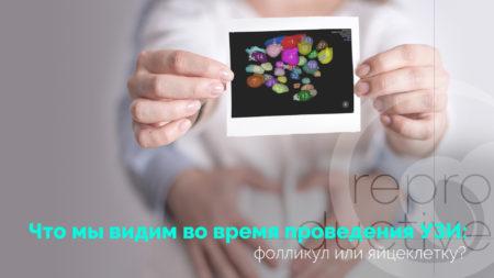 Що ми бачимо під час проведення УЗД: фолікул чи яйцеклітину?