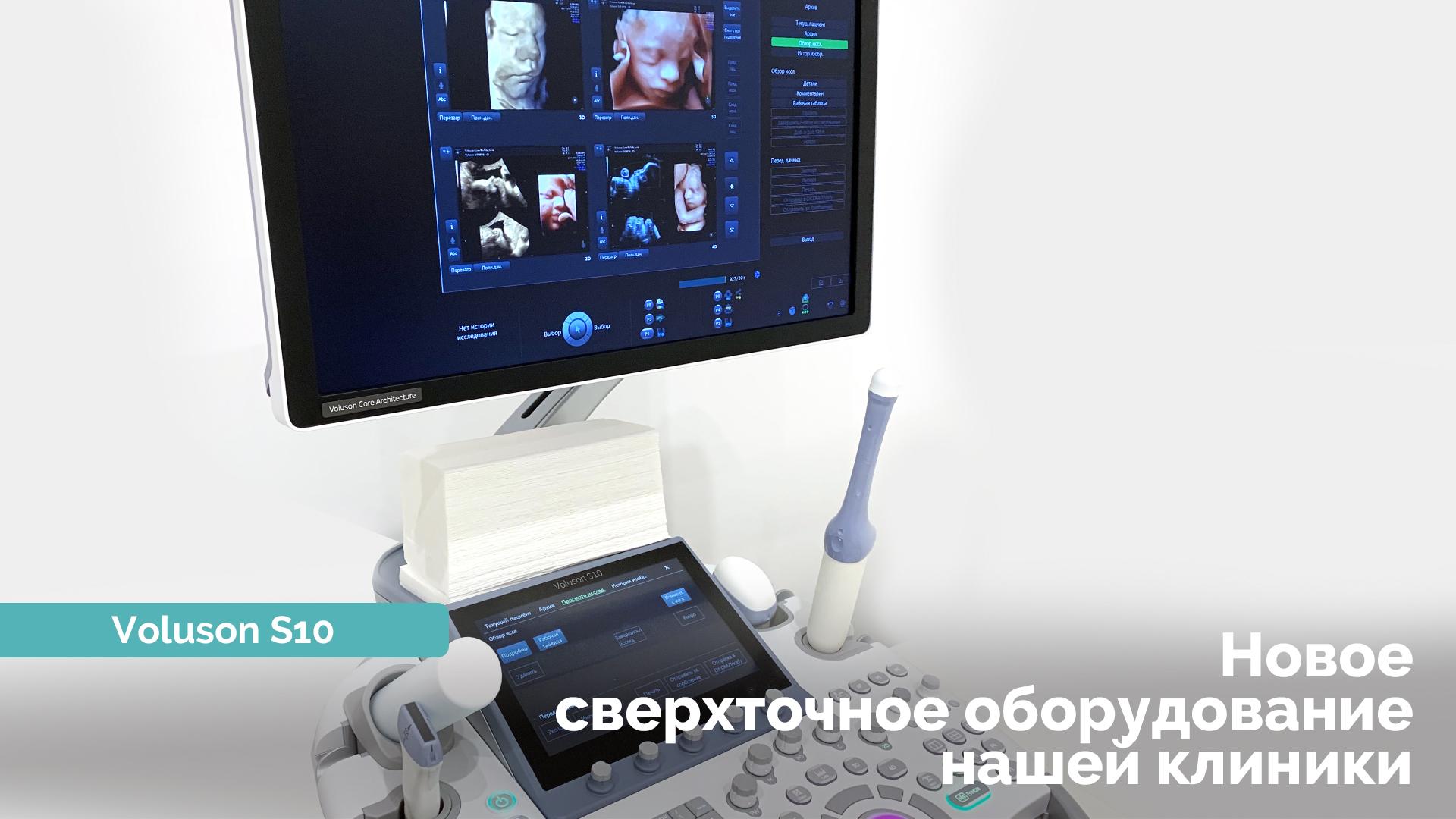 УЗ сканер Voluson S10 - Reprolife